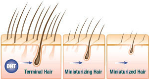 About Hair Loss Pic2