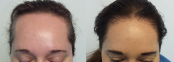 Ziering Medical Before & After Female 2,000 Follicular Units, 1 Hair Transplant, Showing Pre-Op Photos and 11 Months Post-Op