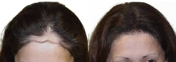 Ziering Medical Before & After Female 1500 Follicular Units, 1 Hair Transplant, Showing Pre-Op Photos and 5 Months Post-Op