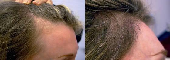 Ziering Medical Before & After Female 2576 Follicular Units, 2 Hair Transplants, Showing Pre-Op Photos and 6 Months Post-Op