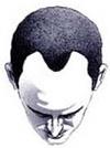 Hair Baldness Pic1