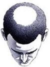 Hair Baldness Pic3