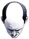 Hair Baldness Pic 4