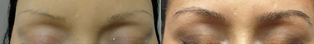 Before & After Eyebrow Transplant