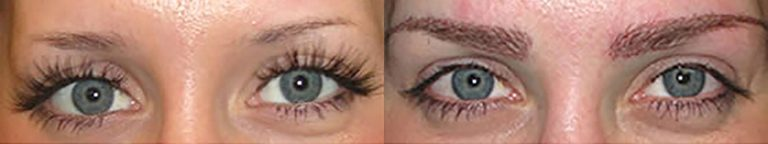 Ziering-Eyebrow-before-after-2