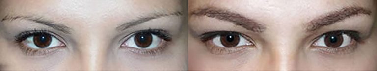 Ziering-Eyebrow-before-after-3