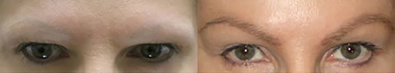 Ziering-Eyebrow-before-after-4