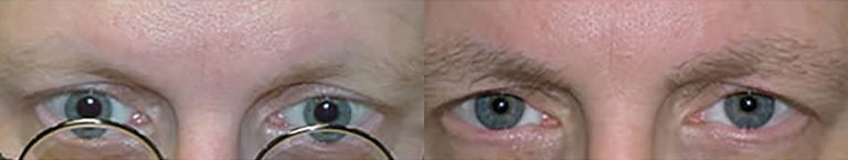 Ziering-Eyebrow-before-after-5