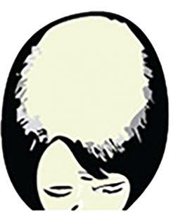 Extensive Female Hair Loss