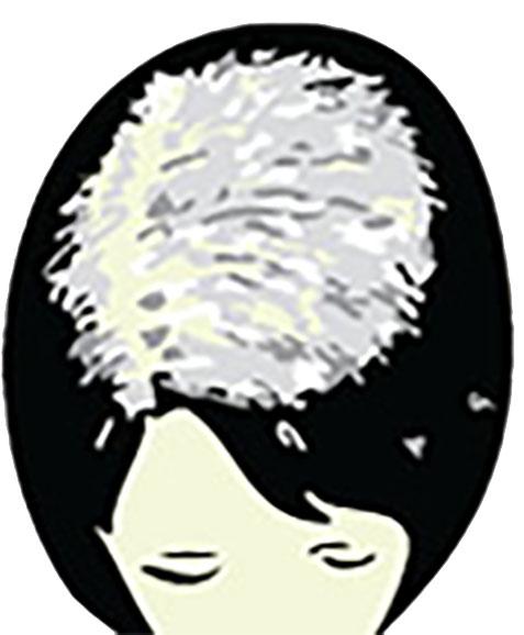 Mild Female Hair Loss