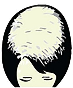 Moderate Female Hair Loss