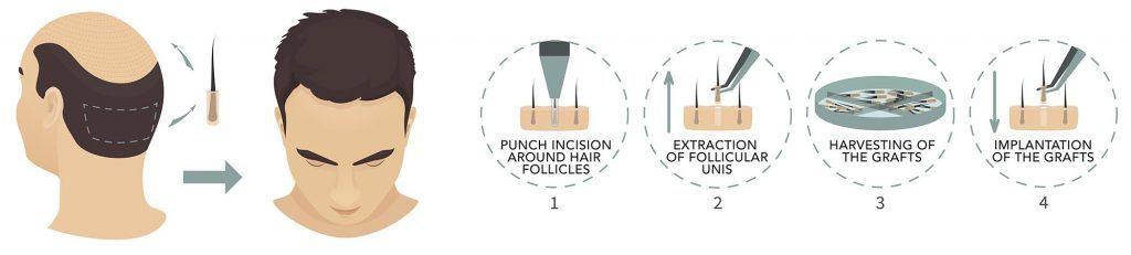 FUE Hair Transplantation Steps