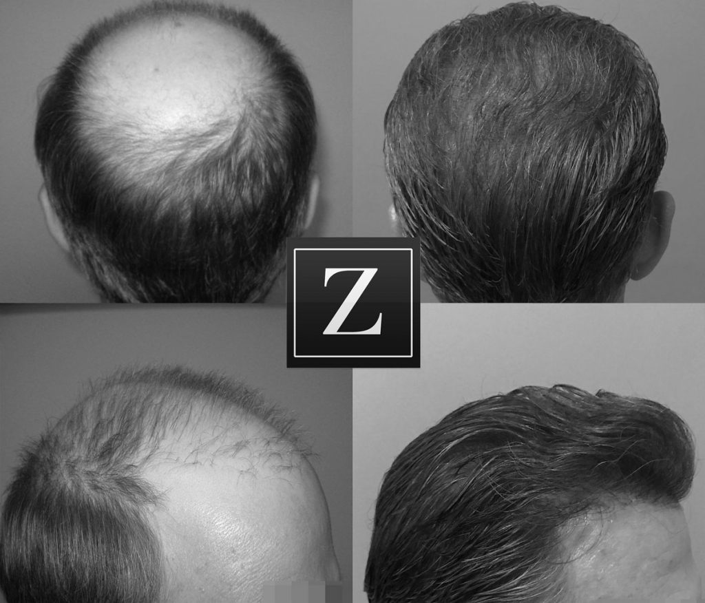 Hair Transplant Before & After Results