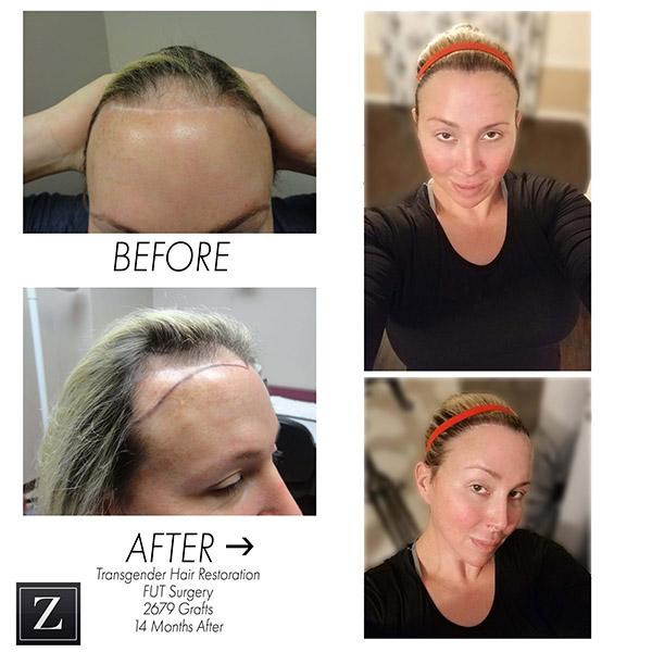 Before & After Transgender Hair Transplant