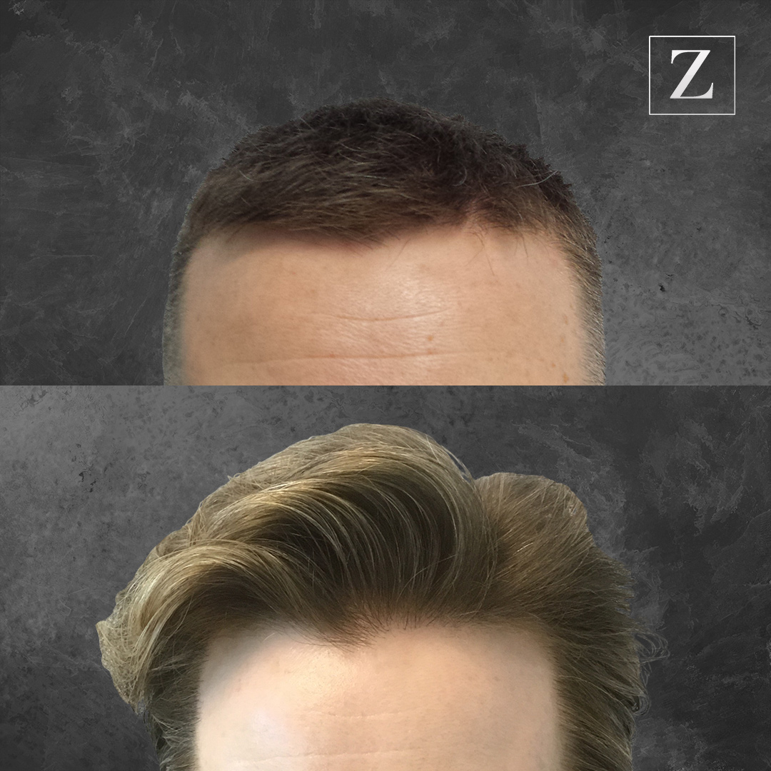 Before & After Male Hair Transplant