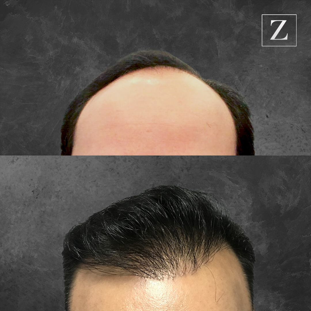 ziering before and after male hair transplant