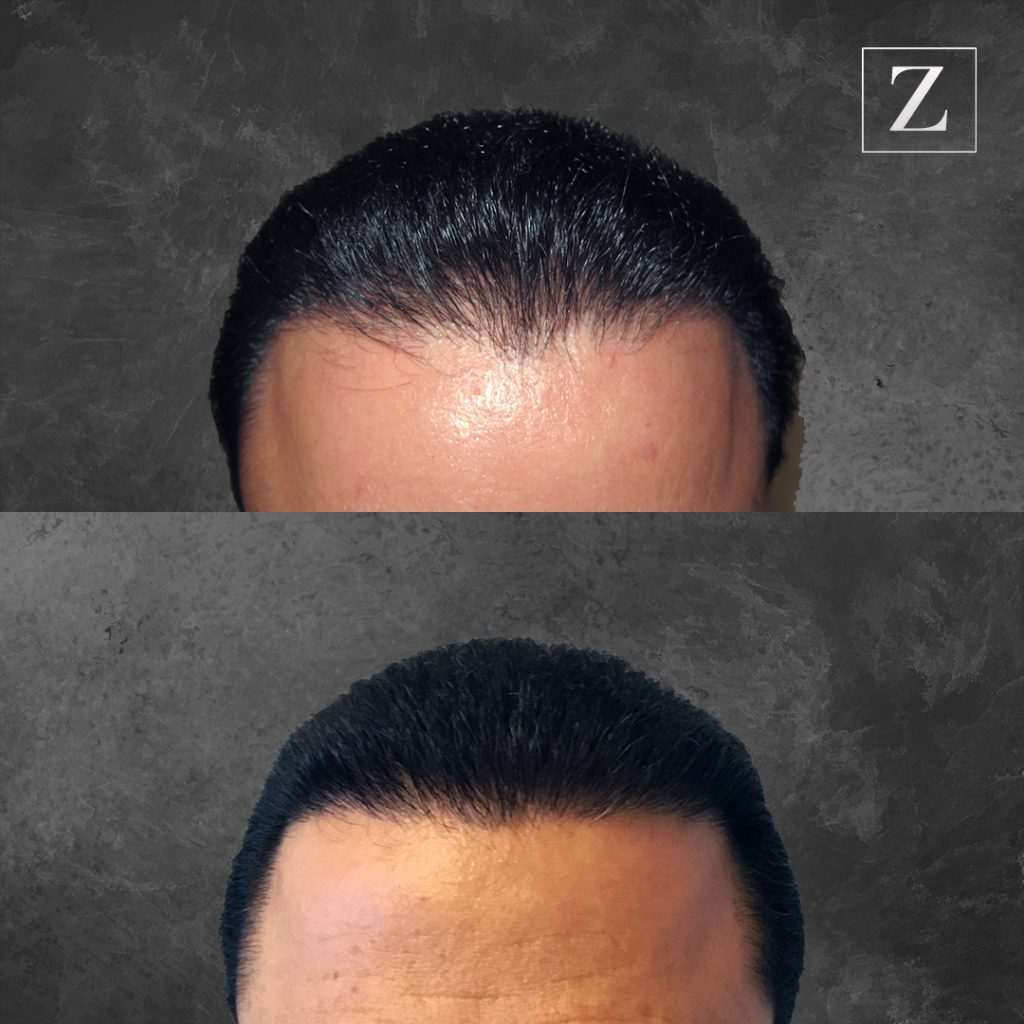 Ziering Medical Before and After Male Hair Transplant