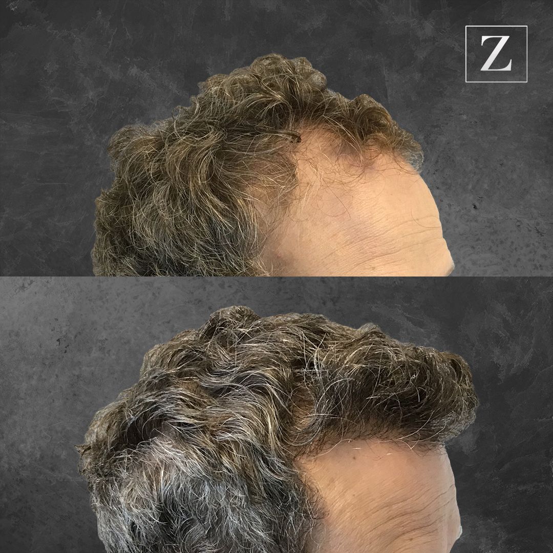 ziering before and after_male-hair-transplant