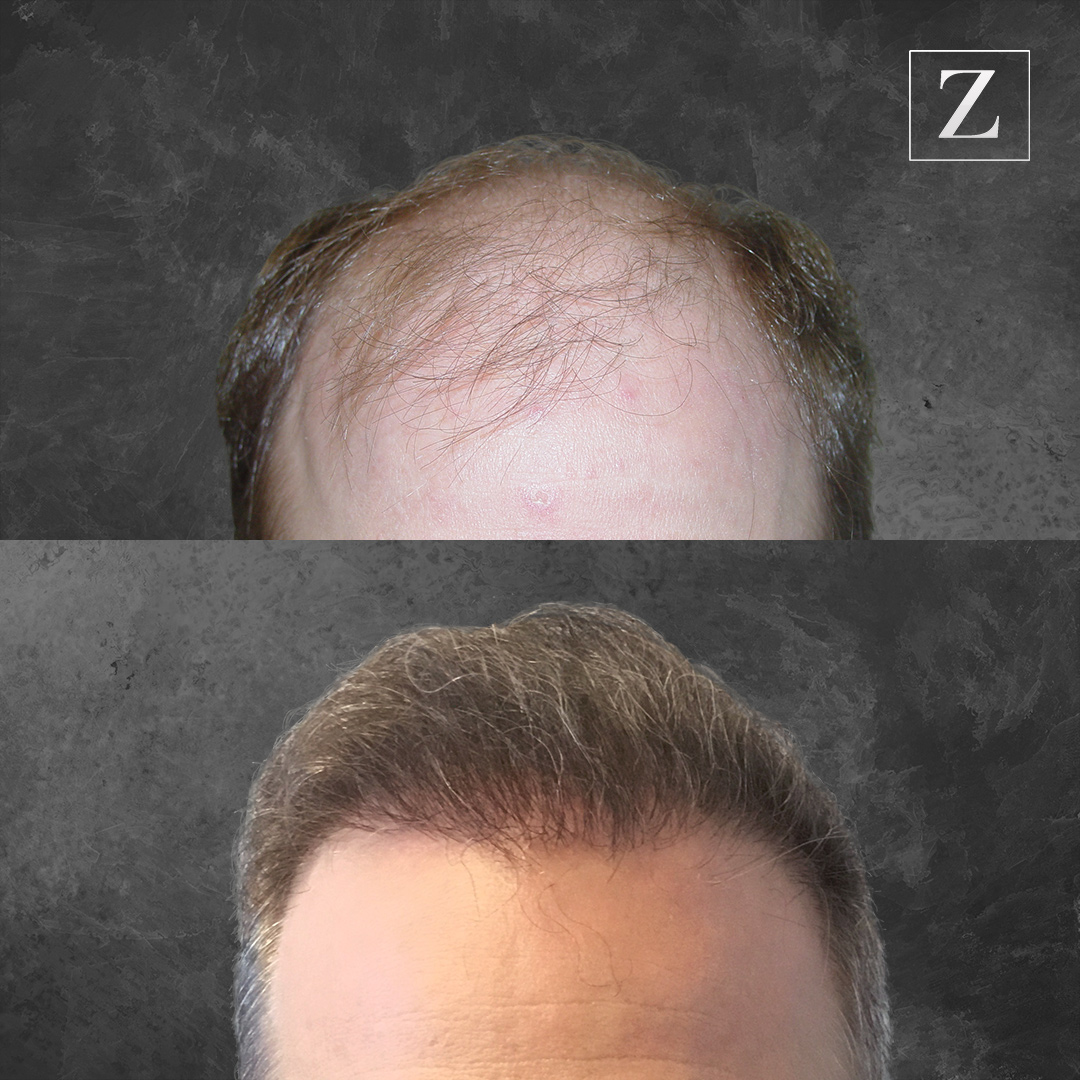 Before and After Male Hair Transplant
