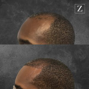 ziering_before-and-after_male-hair-transplant_5_45