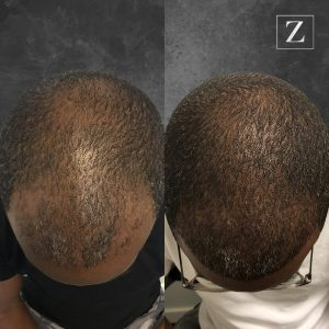 ziering_before-and-after_male-hair-transplant_5_C