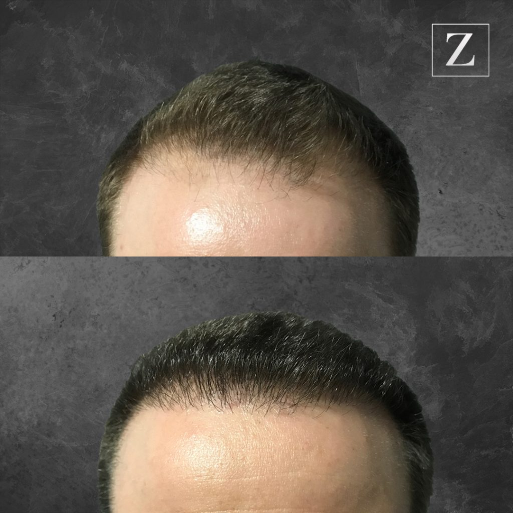 ziering_before-and-after_male-hair-transplant_8_F
