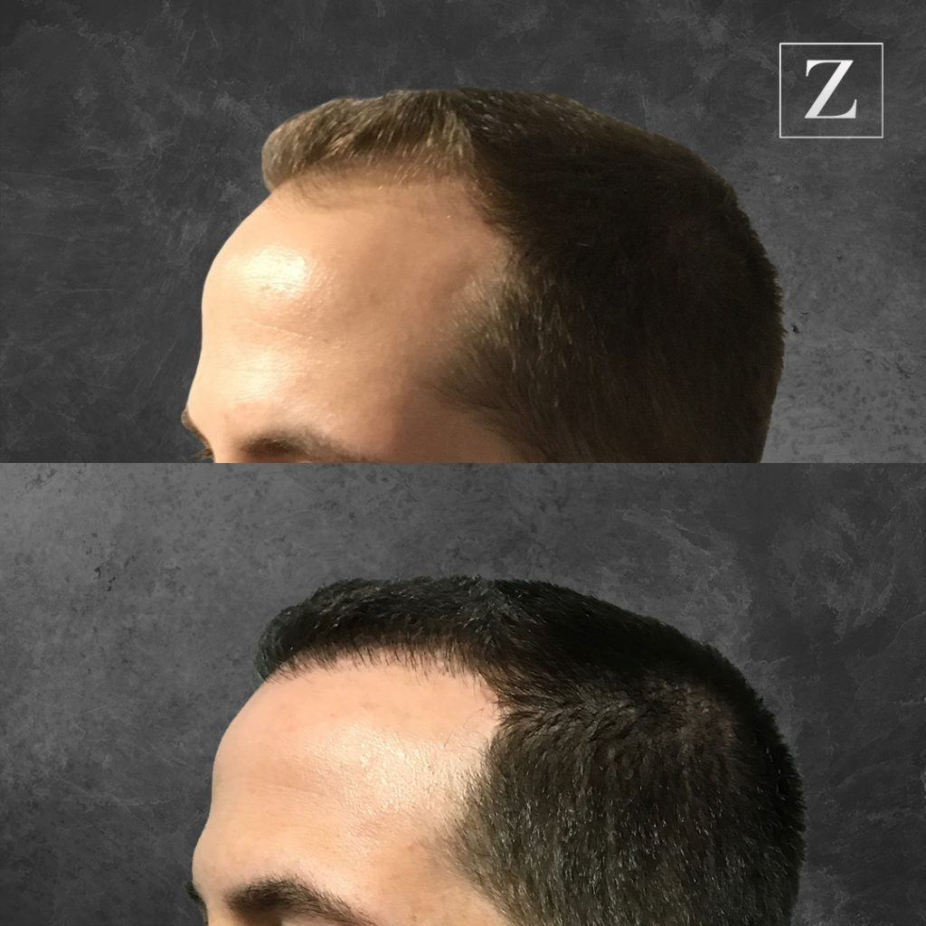 ziering_before-and-after_male-hair-transplant_8_FL-45