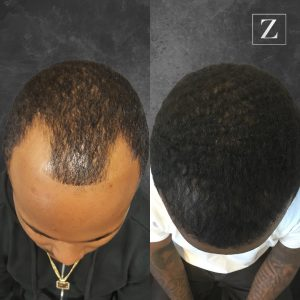 ziering_before-and-after_male-hair-transplant_9_C