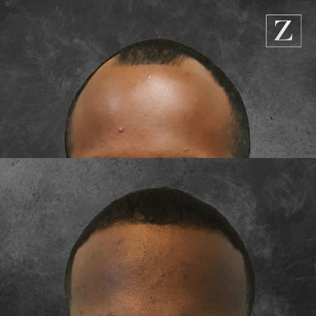 ziering_before-and-after_male-hair-transplant_9_F
