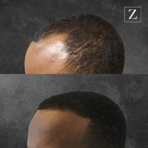 ziering_before-and-after_male-hair-transplant_9_FL-45