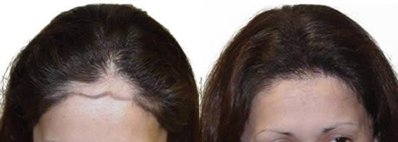 1500 Follicular Units, 1 Hair Transplant