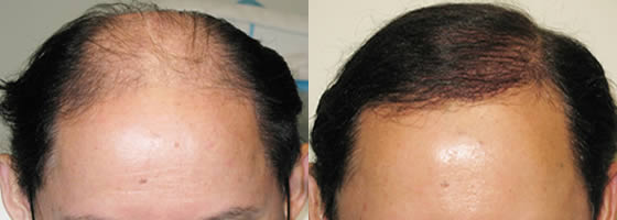 Male Special Case Hair Transplant Before and After