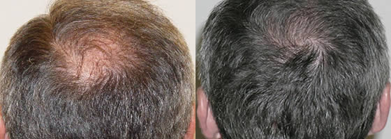 Ziering Whorl Transplant Before and After