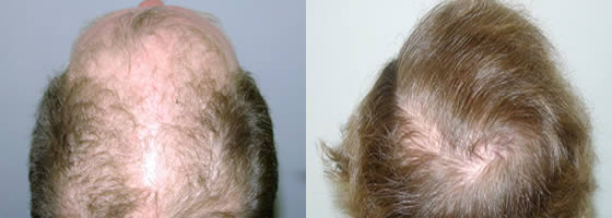 Whorl Hair Transplant Before and After