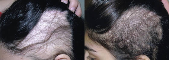 Female Special Case Hair Transplant Before and After