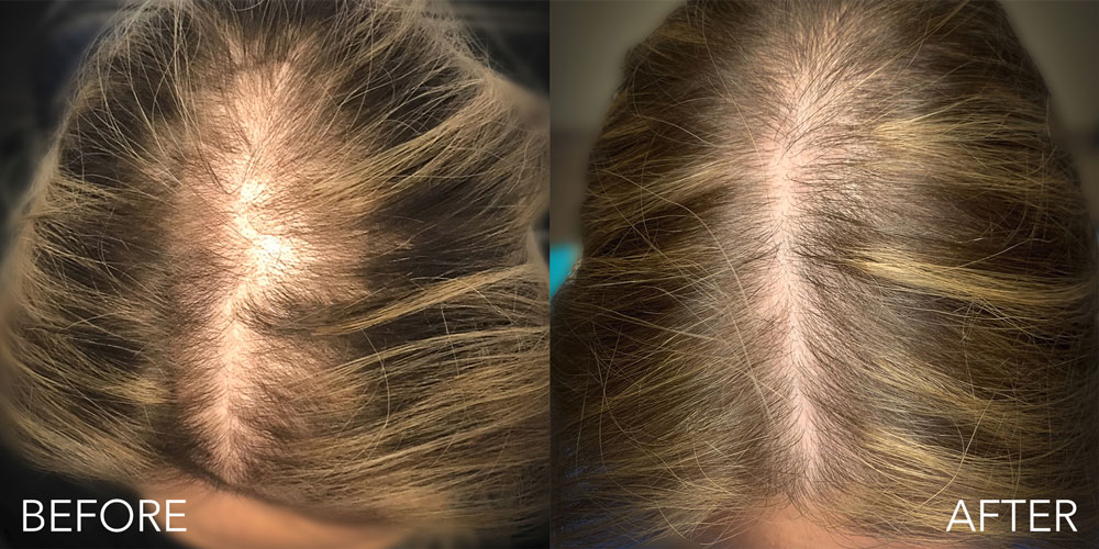 Amnio Z before and after results
