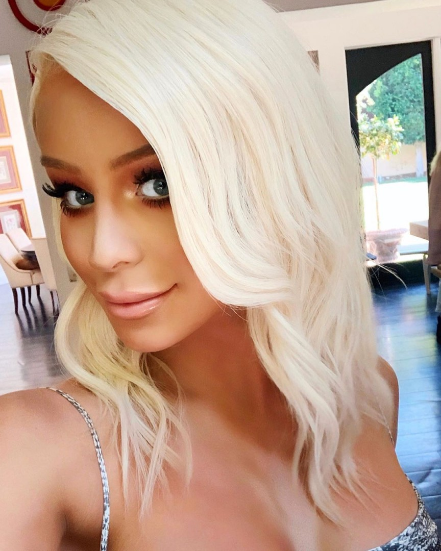 Gigi-Gorgeous-Hair-Transplant-2