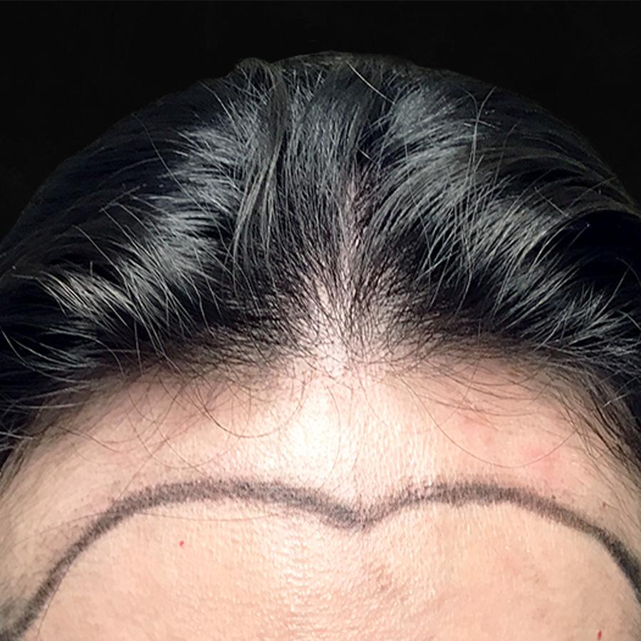 Before Hair Transplant Female