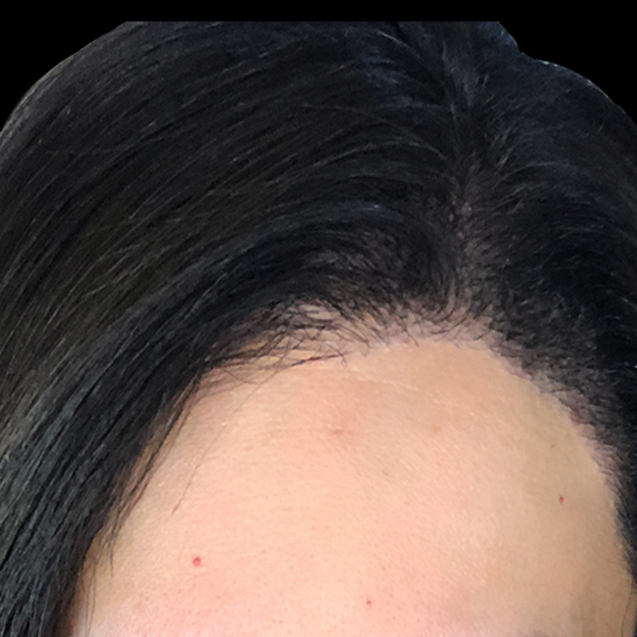 After Hair Transplant Female